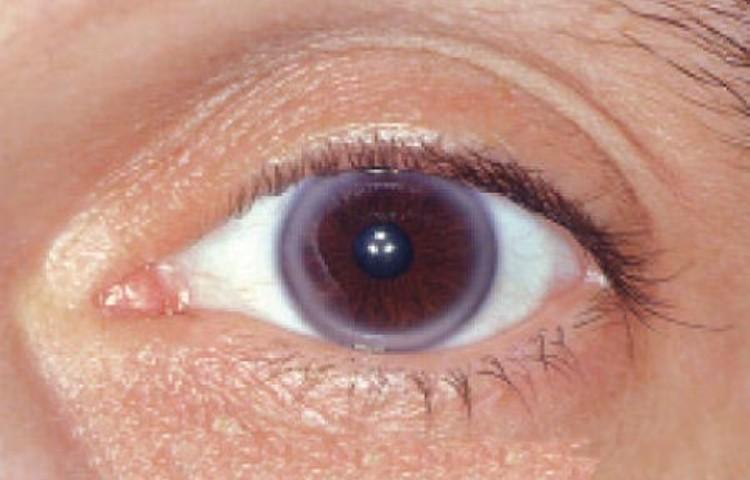 Causes White Rings Around Iris