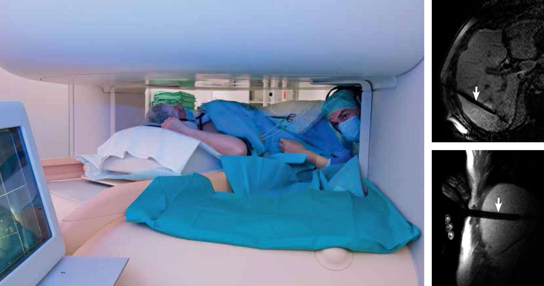 Bildgebende Verfahren: Faszination MRT - Klinik - via medici