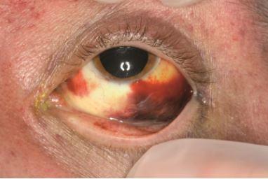 pinguecula steroid eye drops