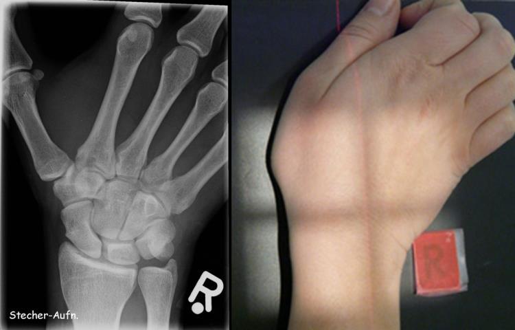 Kleine Knochenkunde: Wie erkenne ich eine Fraktur? - Klinik - Via medici