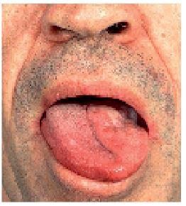 Der zunge zungenpiercing schmerzen unter wie schmerzhaft