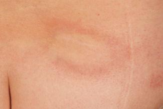 Auf und brust flecken bauch rote Brustkrebs erkennen: