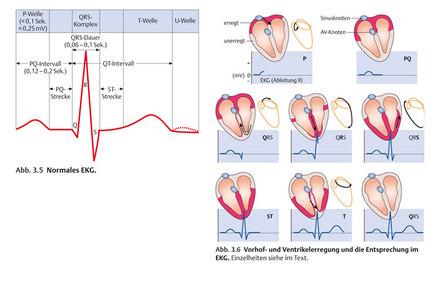 EKG-Kurve - Vorklinik- Via Medici